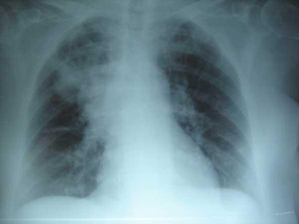 infeccion-respiratoria